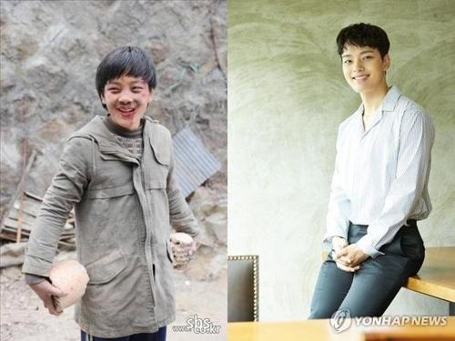 吕珍九的童星时期(左)和现在(韩联社)
