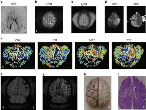 通过氧化铁纳米粒子MRI造影剂拍摄的病猴脑组织影像(韩联社/基础科学研究院提供)