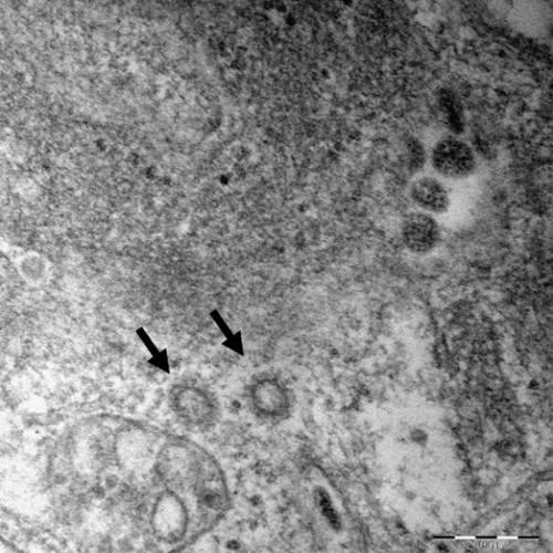 电子显微镜下的新冠病毒高清图像 韩国疾病管理本部供图(图片严禁转载复制)