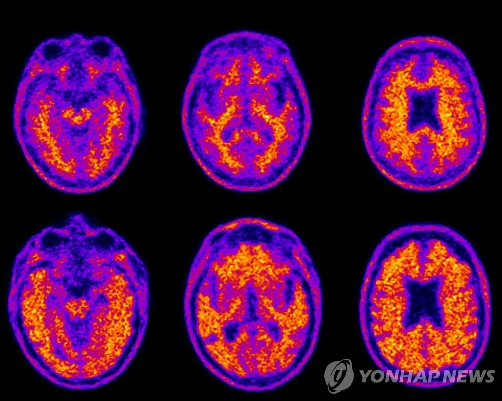 韩政府敲定老年痴呆症国家责任制加强方案
