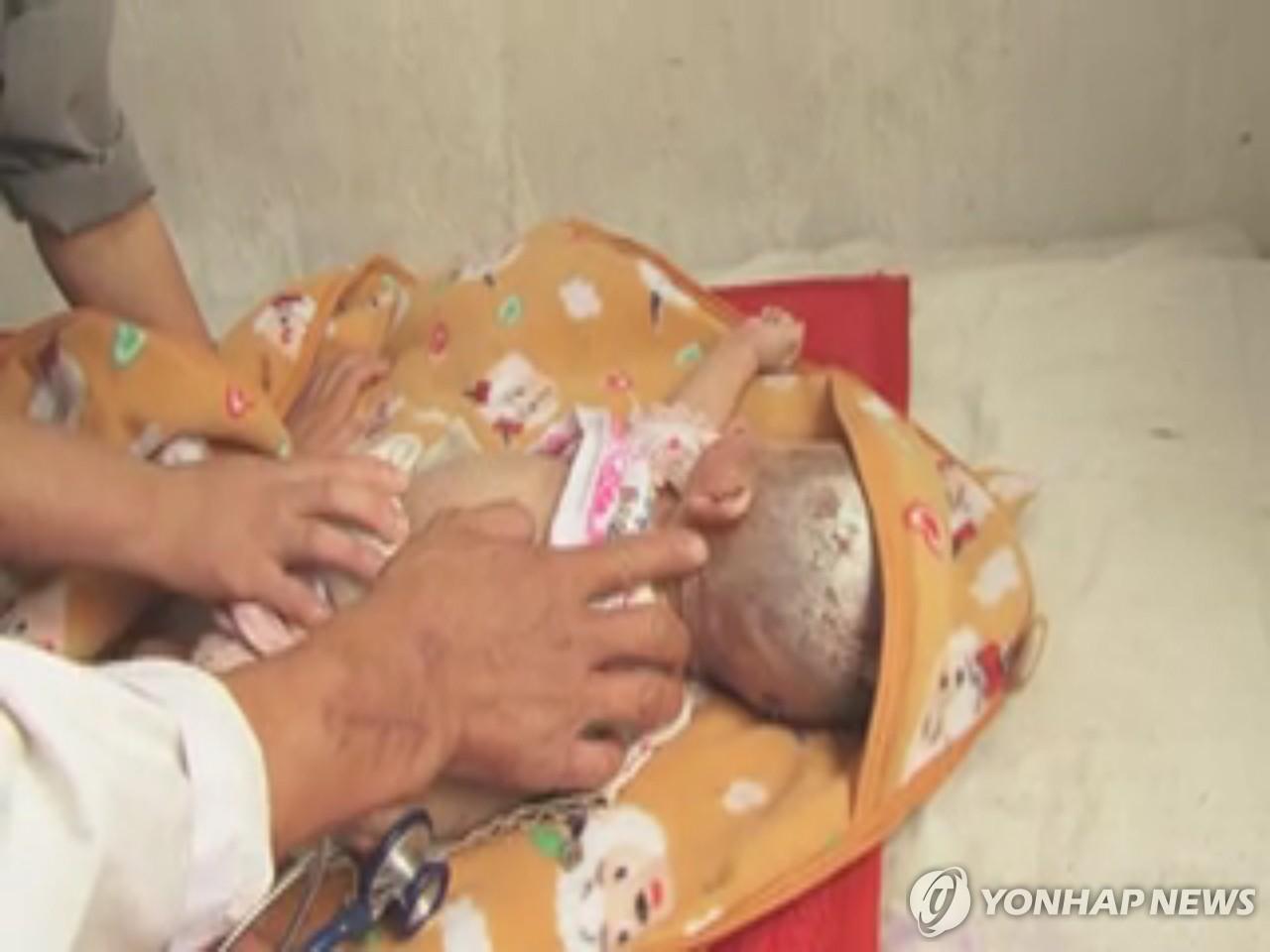 朝鲜儿童营养严重匮乏致疾病