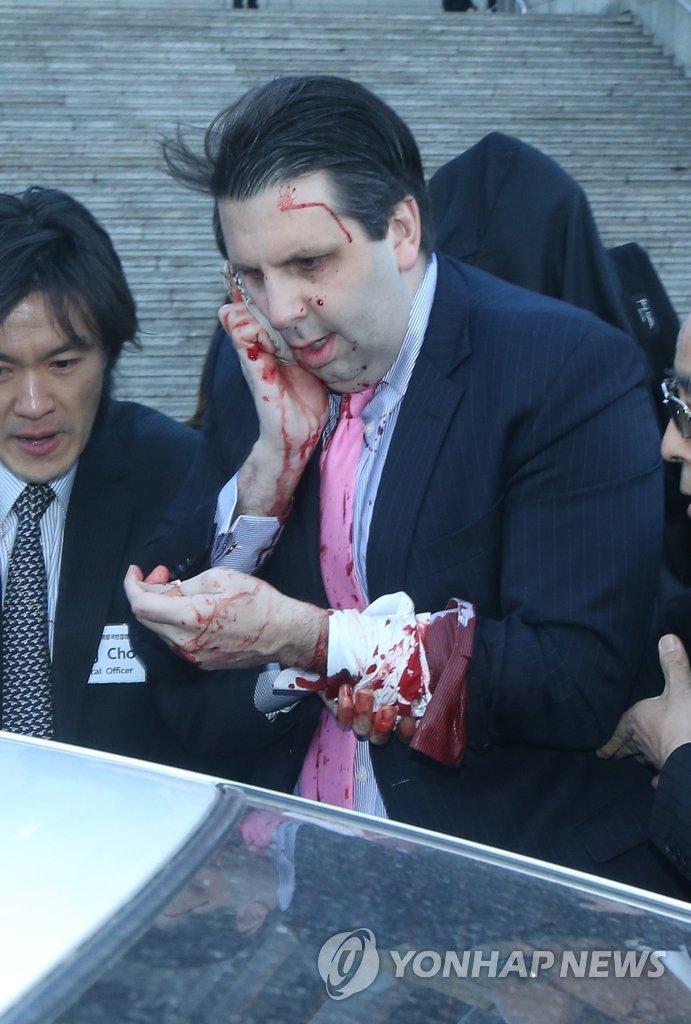 美驻韩大使遭不明身份者袭击受重伤
